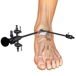 chirurgia atroscopica caviglia dottor paolo dolci