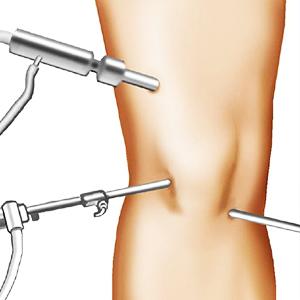 chirurgia atroscopica ginocchio dottor paolo dolci
