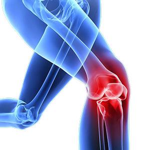 chirurgia del ginocchio toscana grosseto dottor paolo dolci