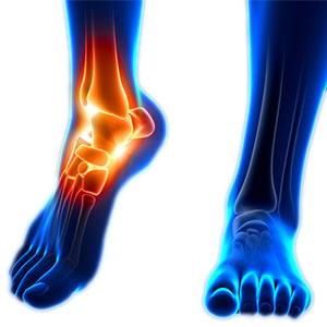 chirurgia protesi caviglia toscana grosseto dottor paolo dolci