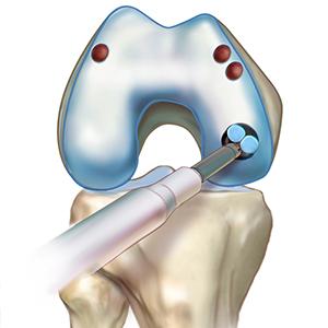 trapianti di cartilagine dott paolo dolci